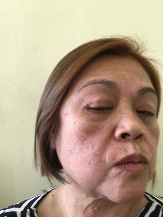 Lorna, after electrosurgery